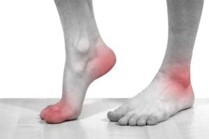 Какие симптомы указывают на то, что у вас подагра