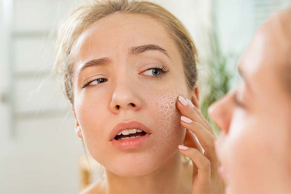 Как справиться с повышенной сухостью кожи